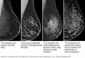 My Breasts Are Dense What Does This Mean And Should I Care